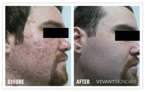 BEFORE_AFTER_-_ACNE5