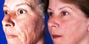 fractional_co2_laser_resurfacing_before___after