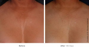 ultherapy-0007-0093ah_180day_1tx_chest_gallery