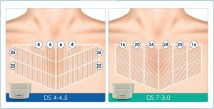 ultherapy-chest-guidelines