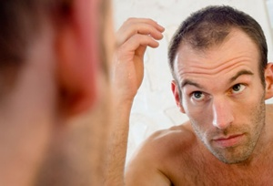 Hair-Loss-genetic