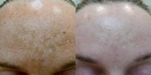 melasma before after 06