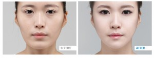 vshape-face-before-and-after