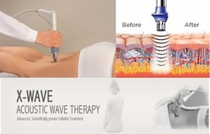 x-wave-acoustic-wave-therapy