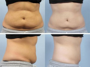 coolsculpting-3dble