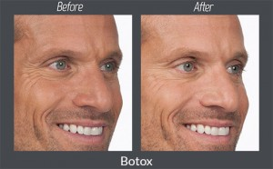Before-and-After-of-Botox-on-Eye-Wrinkles