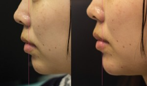 Chin-Augmentation-with-fillers