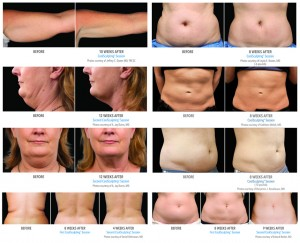 Coolsculpting 7