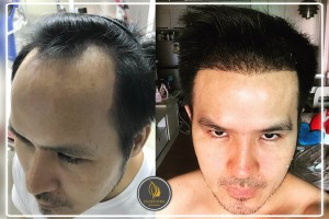hair loss_Before_After 2
