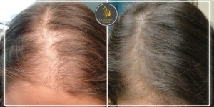 hair loss_Before_After 3