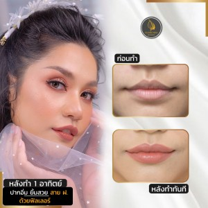 Lip filler before after 1